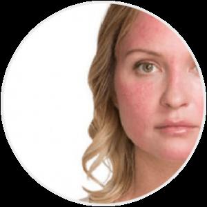 Czerwona skóra twarzy